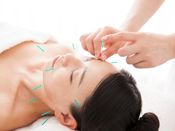 鍼治療を受けている女性